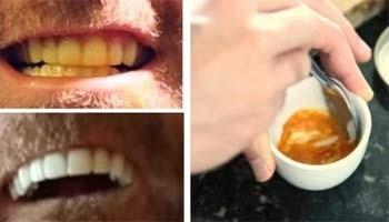 Μάθετε πώς να λευκάνετε μόνοι τα δόντια σας
